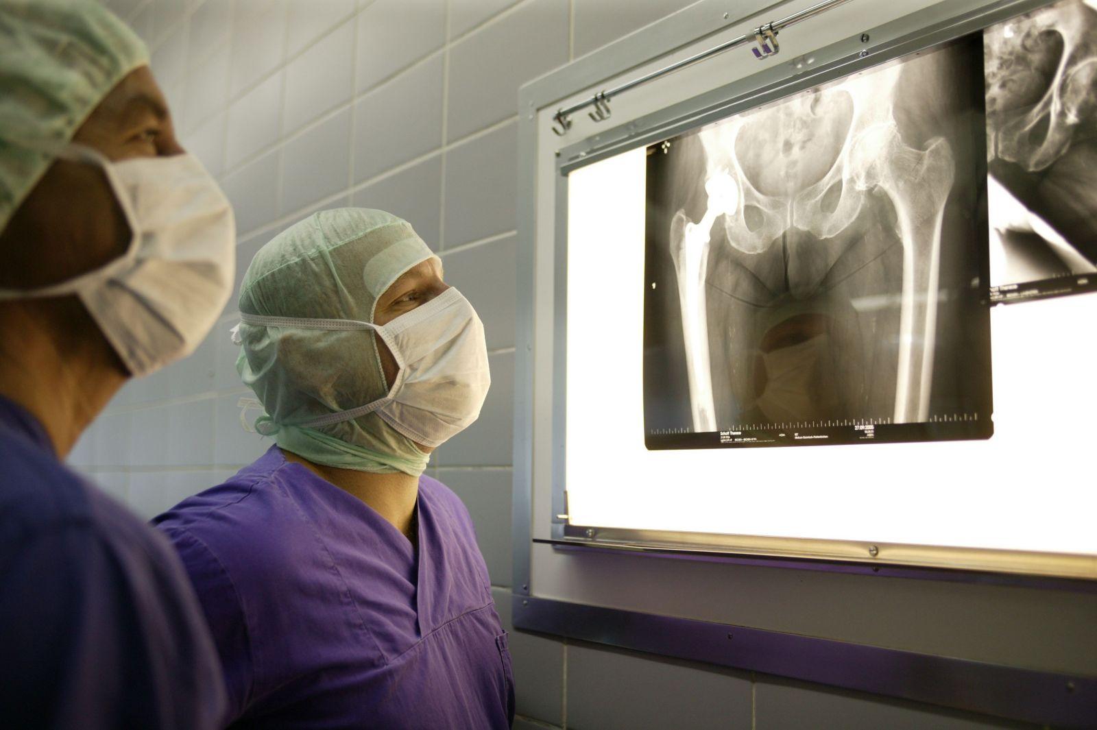 Протезрование сустава шейки бедра саратов изменение в суставе при артрозе и артритах
